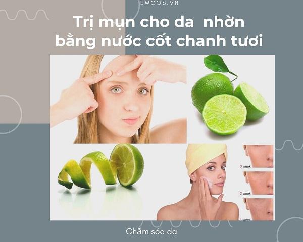 cách trị mụn cho da nhờn tại nhà, cách trị mụn hiệu quả cho da nhờn tại nhà, Cách trị mụn cho da nhờn, cách trị mụn da nhờn